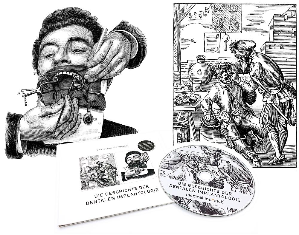 Hörbuch die Geschichte der Implantologie Titelbilder