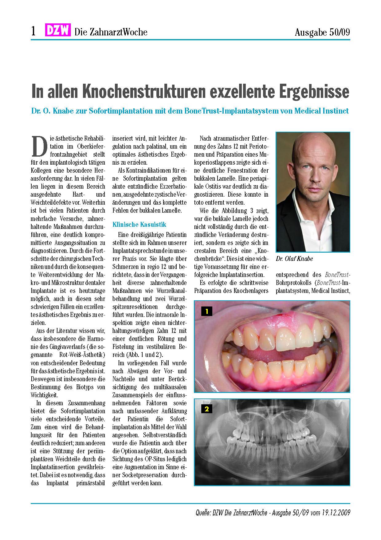 Exzellente Ergebnisse mit BoneTrust® Implantatsystem