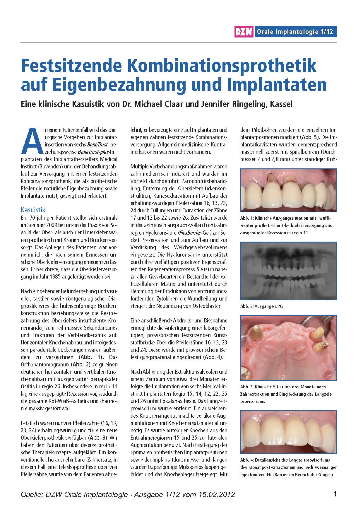 Festsitzende Kombinationsprothetik auf Eigenbezahnung und Implantaten