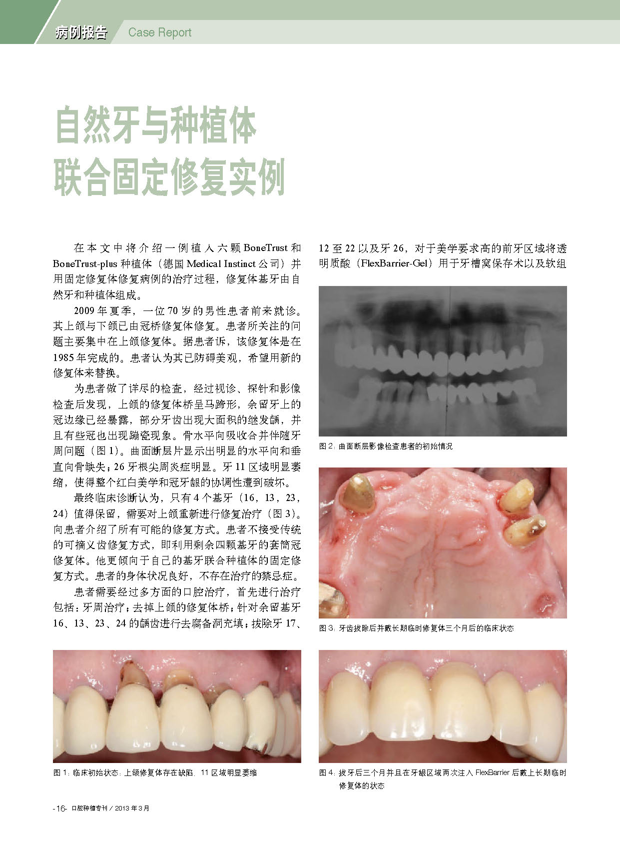 Case Report – Festsitzende Kombinationsprothetik Auf Eigenbezahnung Und Implantaten