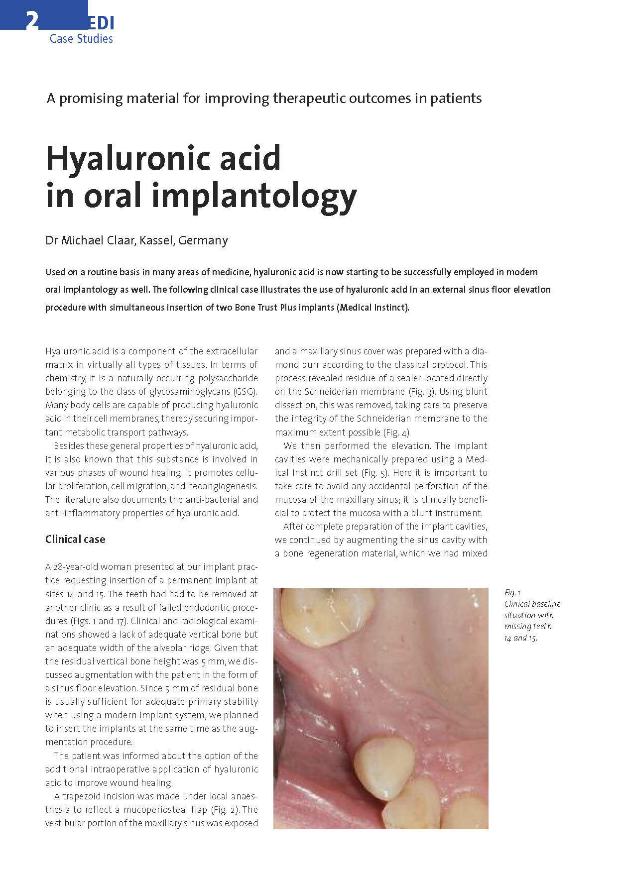 Case Studie - Hyaluronic Acid In Oral Implantology