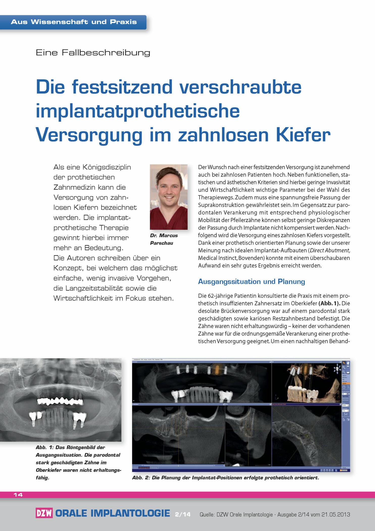 DZW-Fallbericht - Die Festsitzend Verschraubte Implantatprothetische Versorgung Im Zahnlosen Kiefer