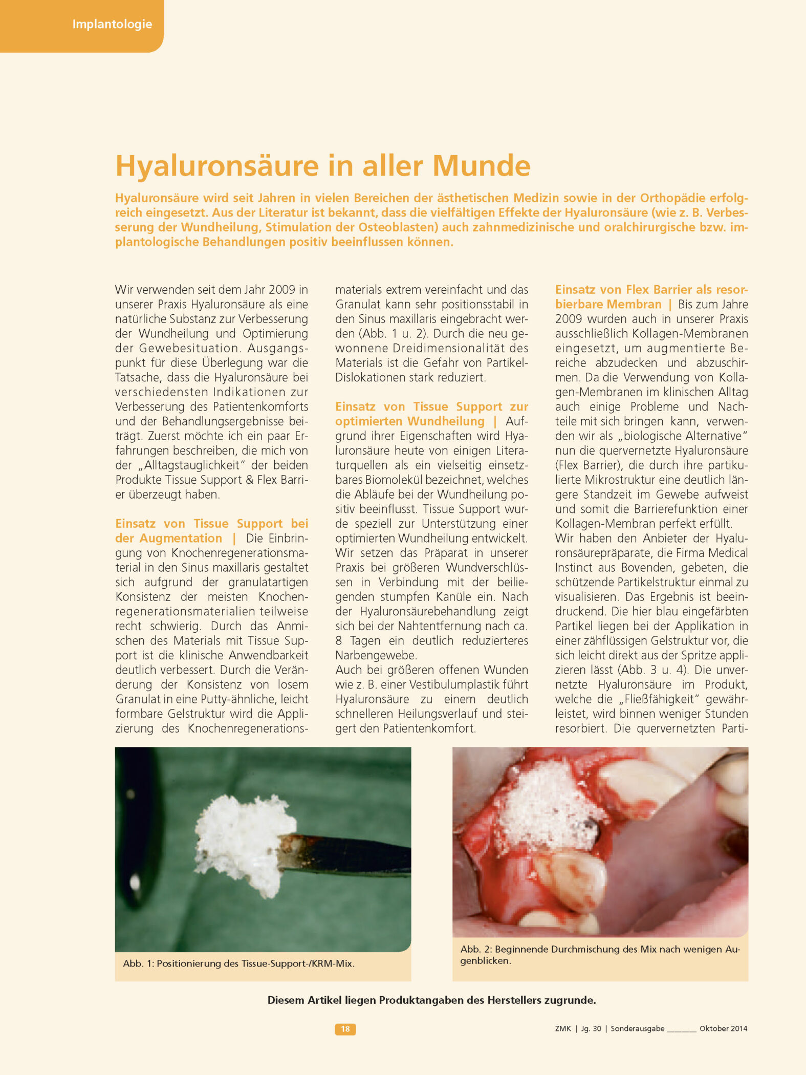 Hyaluronsaeure In Aller Munde