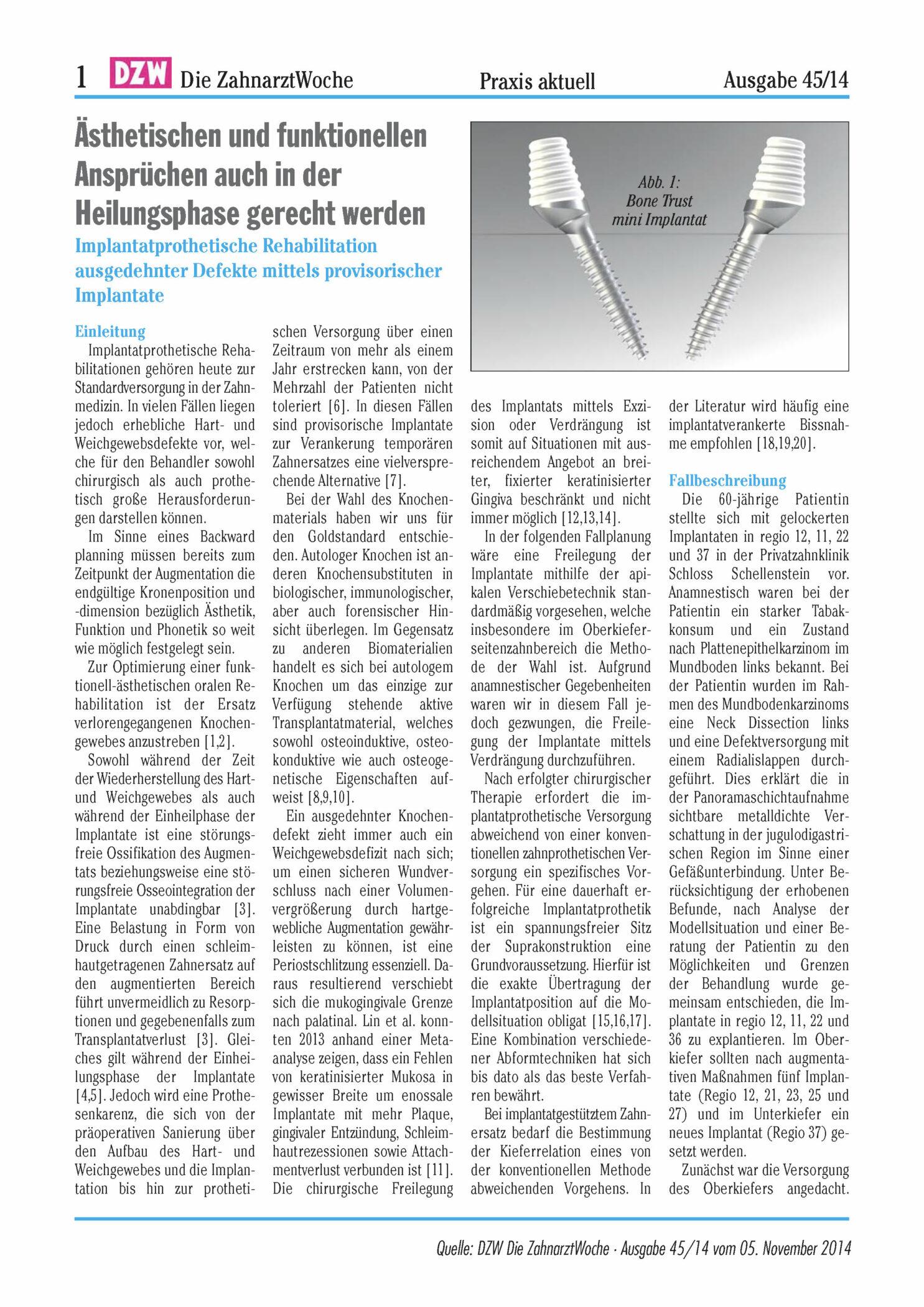 Implantatprothetische Rehabilitation Ausgedehnter Defekte Mittels Provisorischer Implantate