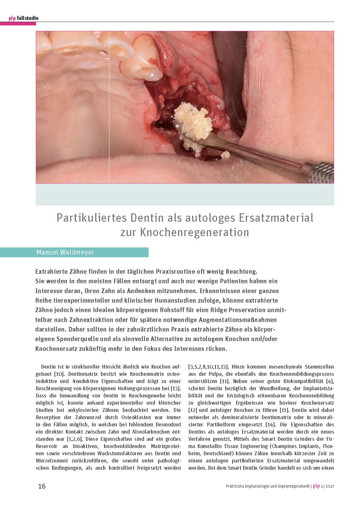 PIP Fallstudie Manuel Waldmeyer - Partikuliertes Dentin als autologes Ersatzmaterial zur Knochenregeneration